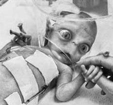 Il mistero della bambina aliena Amy